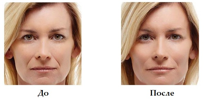 Радиесс фото до и после